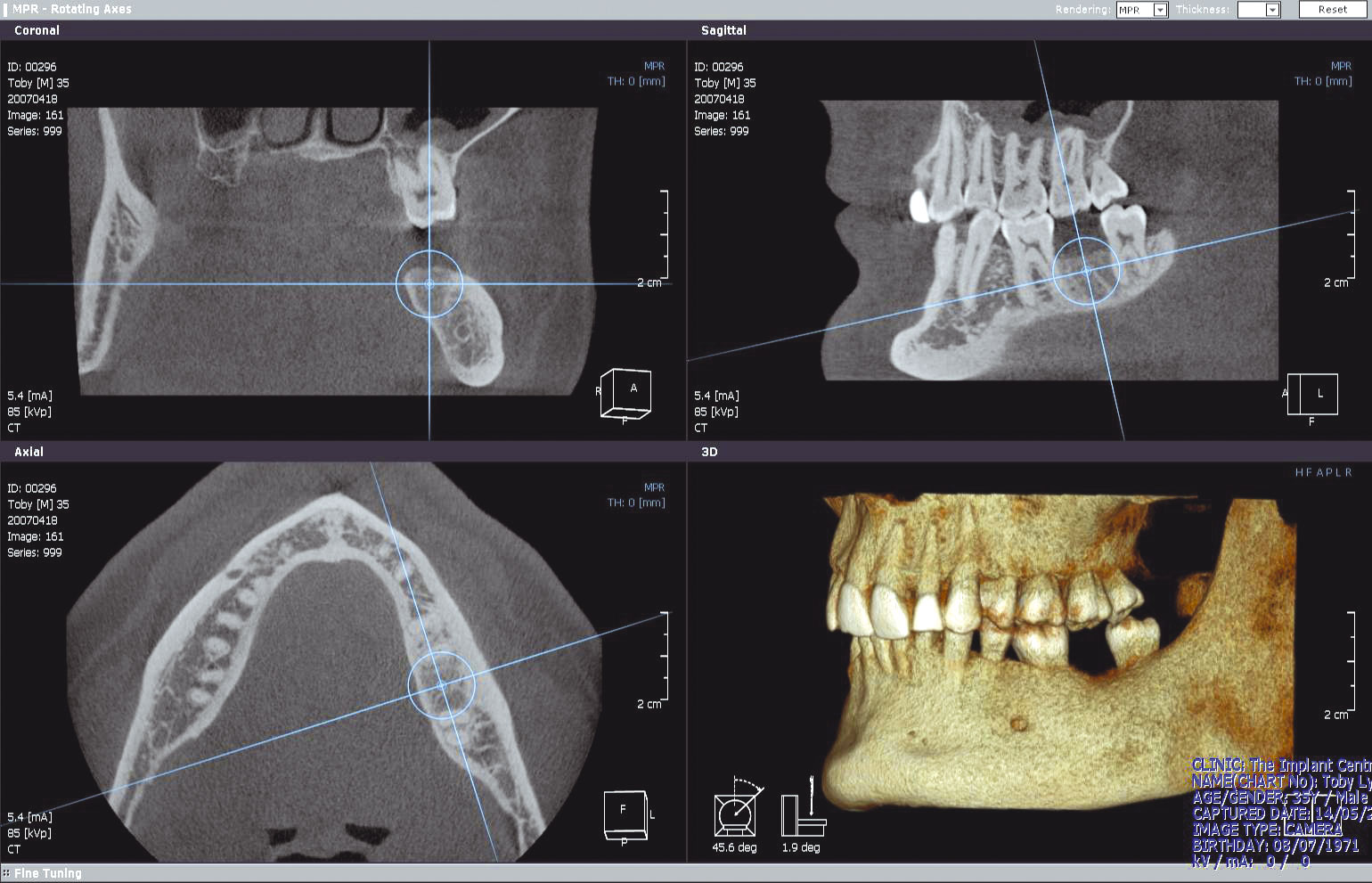dental ct scan machine